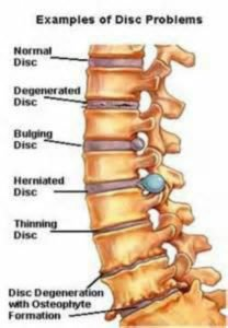 Spinal Disc Problems​